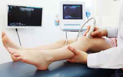 Doppler Ultrasound Exam of Arm or Leg